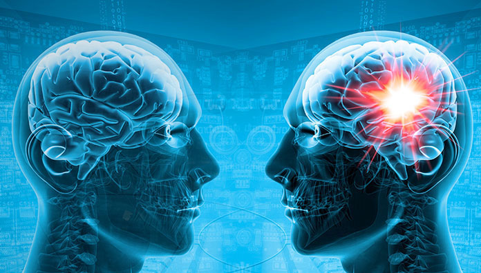 The main difference between Alpha GPC vs. Citicoline!!!
