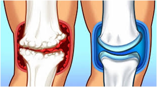 Everything About Joint Pain