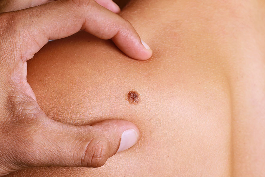 What to know about skin cancer treatment