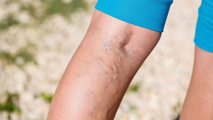 Removing Vein Issues Will Improve Your Life
