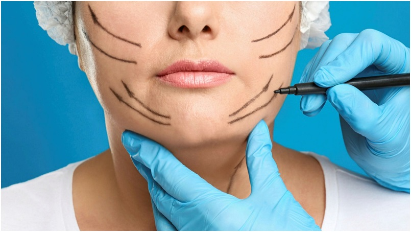 Things to remember while planning for a plastic surgery