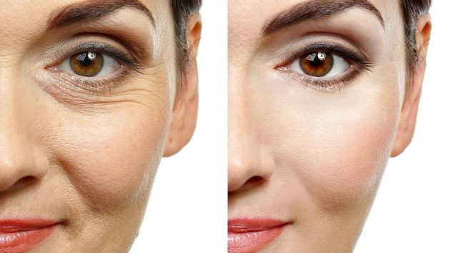 What are the Different Wrinkle Removal Treatments Available?