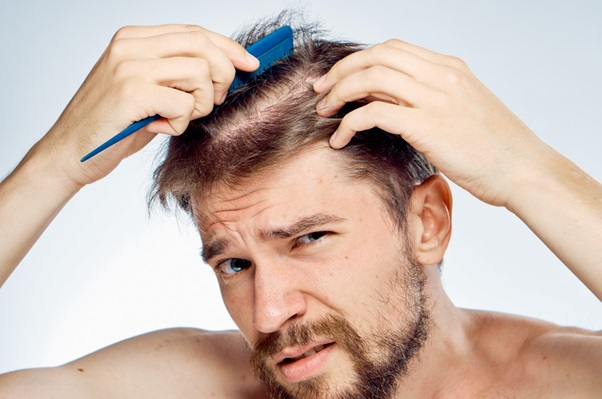 The Different Types of Hair Loss: An Informative Guide