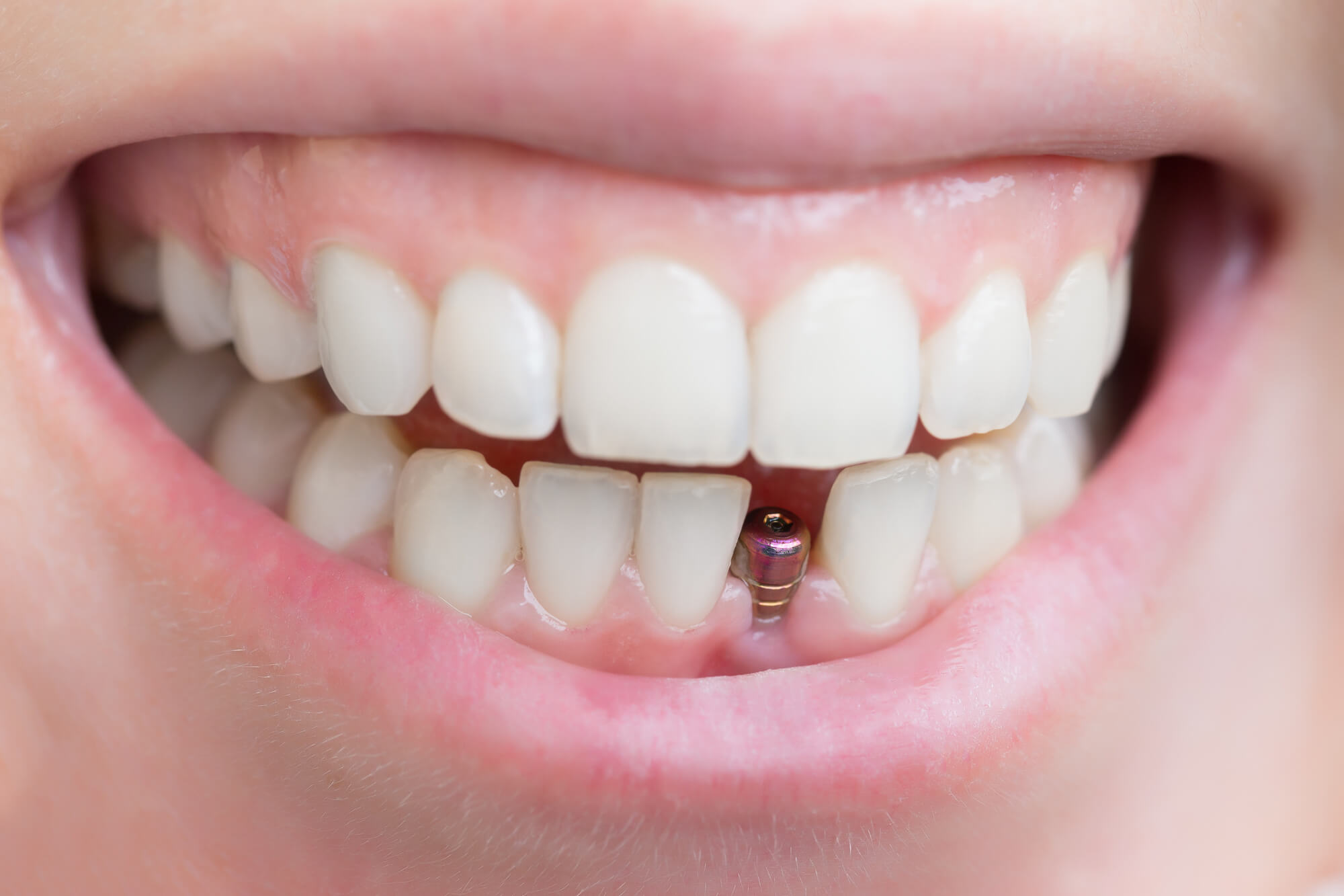 Types of Dental Implants: All the Essentials You Need to Know
