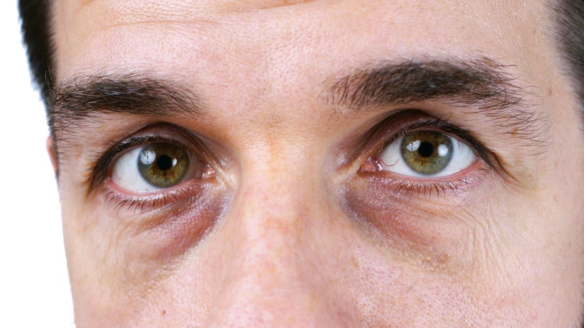 How Do Dark Eye Circles Form and How to Get Rid of Them