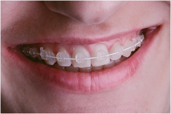 What Are the Different Types of Braces That Exist Today?