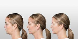 What are Non-Invasive Double Chin Removal Treatments that Work?